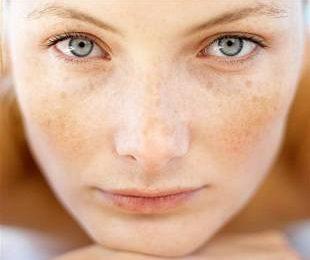 Возрастные пигментные пятна на лице