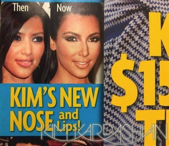 Делала ли Ким Кардашян пластическую операцию?